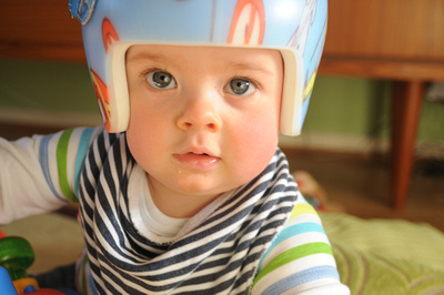 Noah wearing his helmet for Flat Head Syndrome